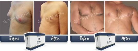 männer brust fett