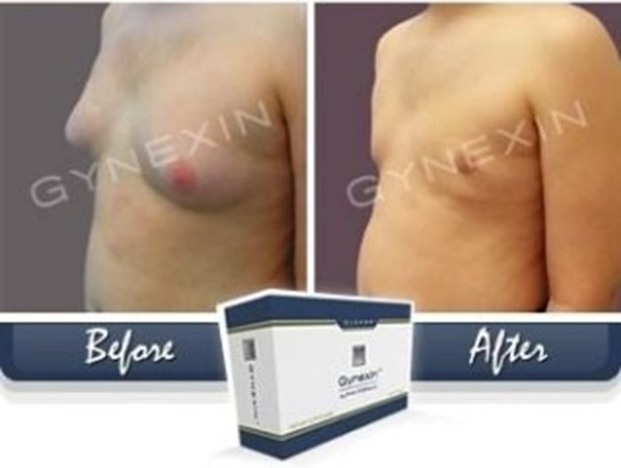 Gynexin : Male breast reduction formula
